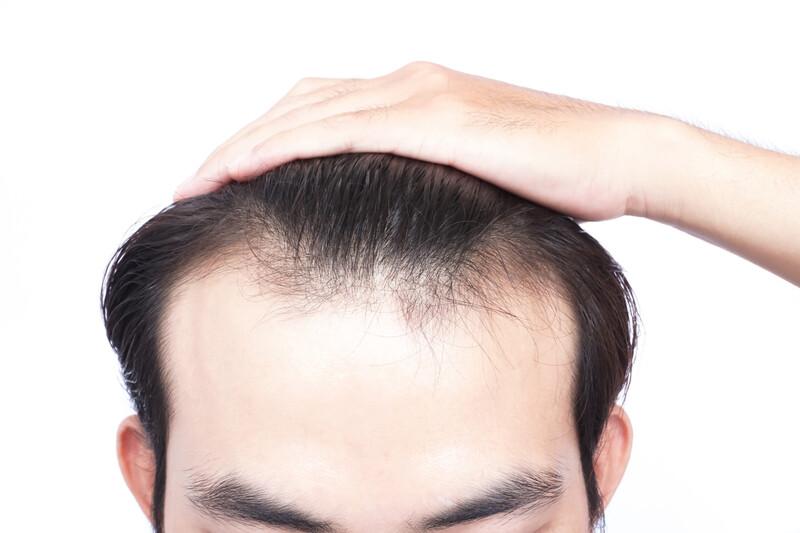Hérédité et chute de cheveux